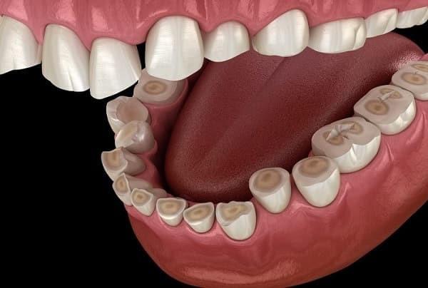 20 - با اروژن یا سایش دندان بیشتر بدانید