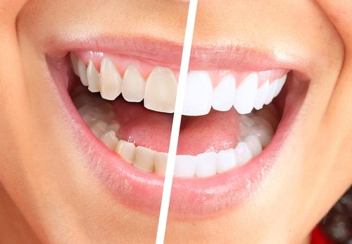 1 - هر آنچه باید در مورد روش های سفید کردن دندان ها پس از ارتودنسی بدانید