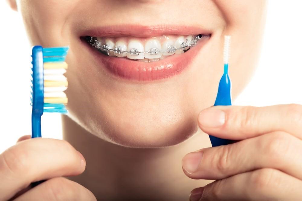 سفید کردن دندان پس از ارتودنسی